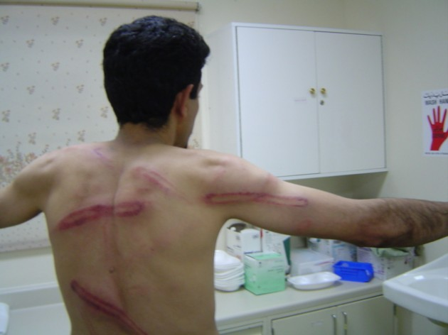 Beating_marks_on_the_back_and_arm_of_Abdulhadi_Alkhawaja_after_police_attacked_a_peaceful_protest_on_15_July_2005