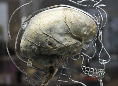 File photo of a real human brain suspended in liquid with a to-scale skeleton