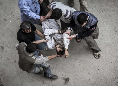 Syrian residents carry a man severely injured from an artillery shell that landed near a bakery, to a hospital for treatment in Aleppo, Syria