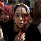 15 August: Injured Syrian women arrive at a field hospital after an air strike hit their homes in the town of Azaz on the outskirts of Aleppo. (AP Photo/ Khalil Hamra)