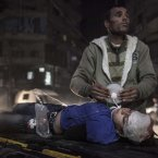31 October: An eight-year-old Syrian girl struggles for life outside a hospital. She was injured during an aerial attack by government forces in the Bab al-Neyrab neighborhood in Aleppo. (AP Photo/Narciso Contreras).